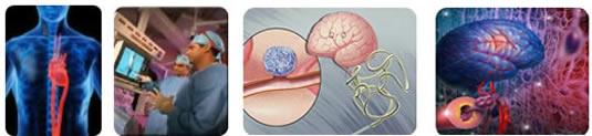 endovascular0