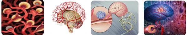 endovascular1